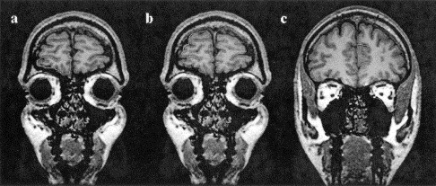 Frontolimbic brain abnormalities in patients with ...